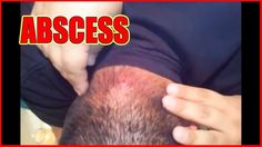 BIG ABSCESS REMOVAL AT HOME - All pimples & Health