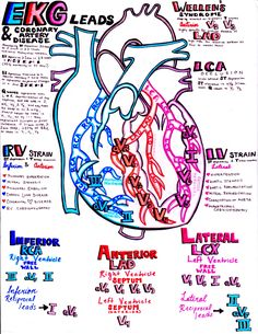 EKG and the coronary arteries.you'll find the perfect cardiology study guide if you combine all my EKG notes! Look in my archived posts to put it all together! Ekg Leads, Cath Lab Nurse, Ed Nurse, Nurse Life, Nursing School Notes, Nursing Schools, Nursing Career, Medical School, Cardiac Nursing