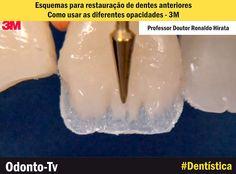 DENTÍSTICA: Esquemas para restauração de dentes anteriores: como usar as diferentes opacidades - 3M   Odonto-Tv