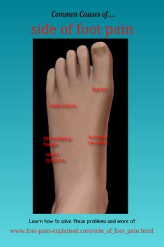 There are numerous causes of pain on the side of the foot. Listed are the more common causes. Visit our web site for information and solutions to these problems. Foot Stretches, Muscle Stretches, Foot Pain Chart, Lisfranc Injury, Plantar Fasciitis Stretches, Tailors Bunion, Bunion Surgery, Foot Pain Relief