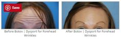 Before & After Botox | Dysport for Forehead Wrinkles