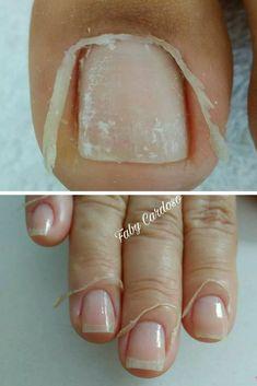 Curso Aprenda a fazer a unha bem feita. Cuticle Care, Cuticle Remover, Nail Care, Baby Pink Nails, Pastel Nails, Square Acrylic Nails, Summer Acrylic Nails, Acrylic Toe Nails, Gel Uv Nails