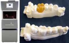 """Dental laboratories have adopted 3D printing to increase production efficiency and precision in the manufacture of medical devices. The introduction of 3D printing to a digital workflow decreases lead time by speeding up the flow of patient diagnostic information between the dentist and the dental lab."""