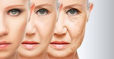 Le passage du temps, les signes de l'âge n'épargnent personne. Avec le vieillissement, la structure de l'élastine et du collagène de la peau perd de son élasticité et la peau elle-même comporte moins de composés auto-hydratants, ce qui lui donne cette apparence relâchée. De plus, l'âge peut affaiblir les muscles faciaux rendant ainsi la peau …