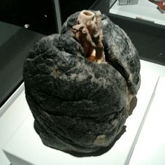 A smokers lungs... Yuck! So glad I don't smoke!