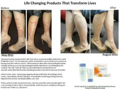 another amazing testimony about Arbonne helping eczema.