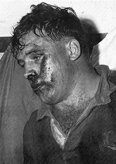 A bloodied Jaap Bekker. Bekker was knocked into submission and was so dazed that he walked around in stupor for most part of the match and afterwards. Craven revealed in the Craven tapes how Skinner had a method of running up behind a player and touch him on the shoulder when the player looked around Skinner would knock him down. According to Danie Craven Skinner did that with both South African props -Bekker and Koch- in the third test of the 1956 series. Sports Pictures, Cool Pictures, South African Rugby, International Rugby, Vintage Sport, All Blacks, Rugby Players, Real Men, Submission