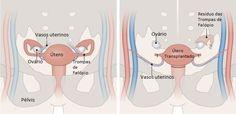 Pesquisadores norte-americanos registram avanços no transplante de útero A expectativa é de que voluntárias comecem o tratamento para engravidar em seis meses