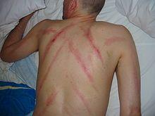 Plantar dermatitis in adults