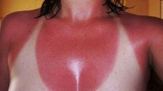 These 21 People Have The Worst Sunburns I've Ever Seen!