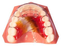 Spring Retainers - AOA Orthodontic Laboratory