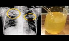 Natural Remedies for Chest Congestion Relief - Everyday Remedy Chest Congestion Remedies, Congestion Relief, Home Remedies, Natural Remedies, Getting Rid Of Phlegm, Glass Of Milk, I Am Awesome, Cukor, Website