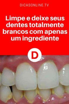 Receitas caseiras para dentes brancos | Limpe e deixe seus dentes totalmente brancos com apenas um ingrediente | Este clareamento dental caseiro funciona mesmo. E é supersimples e barato. Com apenas um ingrediente, você vai deixar seus dentes bem branquinhos. Aprenda, faça e comprove ↓ ↓ ↓