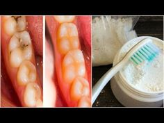 I DO NOT GO BACK TO THE DENTIST. This woman cured her tooth decay and bleached her teeth in just - YouTube