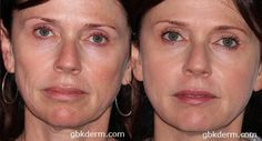 Dermal Fillers are great treatments for under eye hollows #beforeandafter