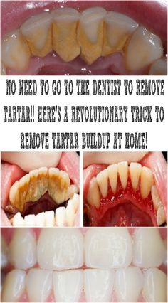 Tartar is mineralized dental plaque usually brown or yellow in color. The appearance of tartar can cause many oral disorders like for. Teeth Health, Oral Health, Healthy Teeth, Gum Health, Dental Health, Health Facts, Health Tips, Natural Home Remedies, Natural Healing
