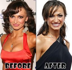 Karina Smirnoff Before And After Plastic surgery