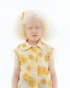 When photographer Yulia Taits posted her hypnotizing photo series that capture the beauty of Albino people, it inspired us to look further and find more people with Albinism. Albino Girl, Melanism, Photo Series, People Of The World, Pure Beauty, Photography Poses, Beautiful People, Flower Girl Dresses, Pure Products