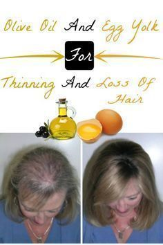 Hair Remedies Olive Oil and Egg Yolk For Thinning and Loss Of Hair Home Remedies For Hair, Hair Loss Remedies, Thinning Hair Remedies, Oil For Hair Loss, Hair Loss Shampoo, Prevent Hair Loss, Hair Loss Treatment, Hair Treatments, Natural Treatments