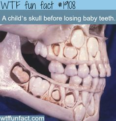 A child's skull before losing baby teeth - WTF fun facts>>>>> that is so disgusting. that's what my skull looks like with baby teeth. ew