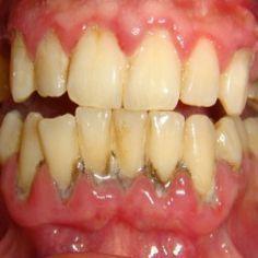 How To Cure Gum Disease #oralgumremedies