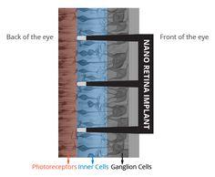 Otro increíble avance israelí que puede ayudar a miles, o quizás millones de personasue han perdido su visión debido a enfermedades degenerativas de la retina.El dispositivo Nano Retina, el NR600…