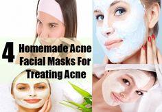 Homemade Acne Facial Masks For Treating Acne - Best Facial Masks For Acne   GilsCosmo.com - Shopping made easy!
