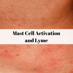The agony of mast cell activation syndrome (MCAS) and Lyme Disease Lyme Disease Tick, Autoimmune Disease, Disease Symptoms, Low Histamine Foods, Mast Cell Activation Syndrome, Ehlers Danlos Syndrome, Found Out, Juices, Soaps