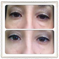 How can you get these results. 2-minutes Instantly Ageless !!! Message me for your results I can Laugh Lines, Chin Up, Wrinkle Remover, Look Younger, Dark Circles, Messages, Live