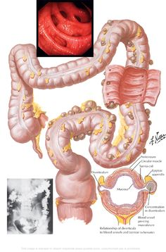 This is an x-ray and illustration of an actual large intestine (colon) with diverticula. #Diverticula are the outward pouches in the large intestine, most often due to outward pressure on the intestinal walls (#constipation).