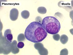 Plasmocytes VS Lymphocytes