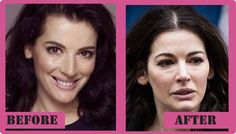 Nigella Lawson Plastic Surgery Before And After Nigella Lawson Plastic Surgery #NigellaLawsonPlasticSurgery #NigellaLawson #gossipmagazines
