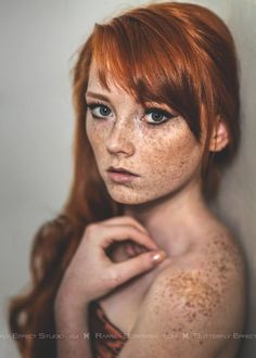 Freckles are beautiful!