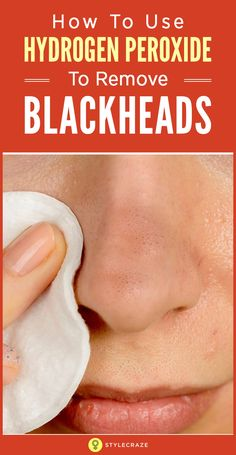 Wash face with mild cleanser Exfoliate with face scrub Use hydrogen peroxide and cotton ball to treat blackheads, avoid eyebrows and hairline Blackhead Remedies, Acne Remedies, Blackhead Remover, Natural Remedies, Cold Remedies, Holistic Remedies, Blackhead Scrub, Sleep Remedies, Skin Care