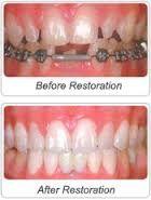 Length of dental implant