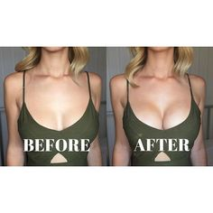 a3bcc79e55 Stella s Before and After Upbra Results!  upbra Bh Hacks