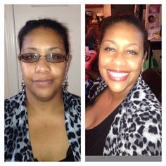 Before and After                 marykay.com/rlane-torrez