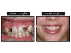 Portal Markets.com | Root Canal Treatment, Laser Dentistry, Teeth Whitening by Best Dental Clinc | Orissa | Health - Beauty - Fitness