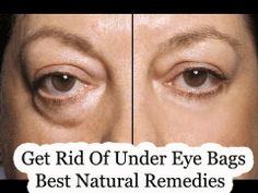 Get Rid Of Under Eye Bags-Best Natural Remedies - Best Home Remedies