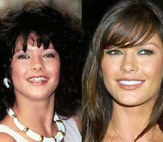 Catherine Zeta Jones before and after  www.prosmiles.co.uk
