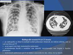 interpreting chest x rays illustrated with 100 cases pdf