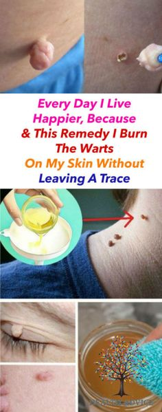 Sagging Skin Remedies Every Day I Live Happier, Because This Remedy I Burn The Warts On My Skin Without Leaving A Trace - Natural Cure Warts On Hands, Warts On Face, Get Rid Of Warts, Remove Warts, What Causes Warts, Home Remedies For Warts, Natural Cold Remedies, Skin Tag Removal, Sagging Skin