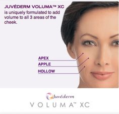 Ethos Spa NJ facial rejuvenation with juvederm