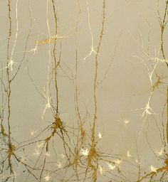 Art inspired by firing neurons in the brain. Cool.