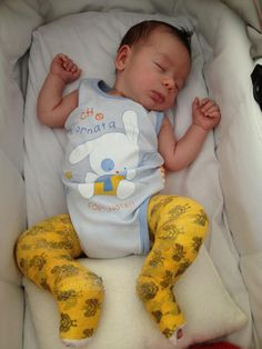Cute babies in their Ponseti casts to correct clubfoot