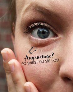 Was tun gegen Augenringe!