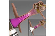 Araştırmacılar orta kulak enfeksiyonlarını tedavi etmek için yeni bir teknik geliştirdi Ear Infection, Bacterial Infection, Streptococcus Pneumoniae, Pseudomonas Aeruginosa, Middle Ear, Inner Ear, Cell Membrane, Alternative Treatments, Medical