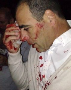 8 Muslims brutally attack Jewish family of 5 at Sydney hotel