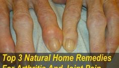 3 Natural Home Remedies for Arthritis & Joint Pain