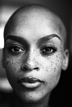 Bald and freckles?? Gorgeous!